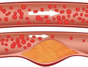 Холестерин на стенках сосудов