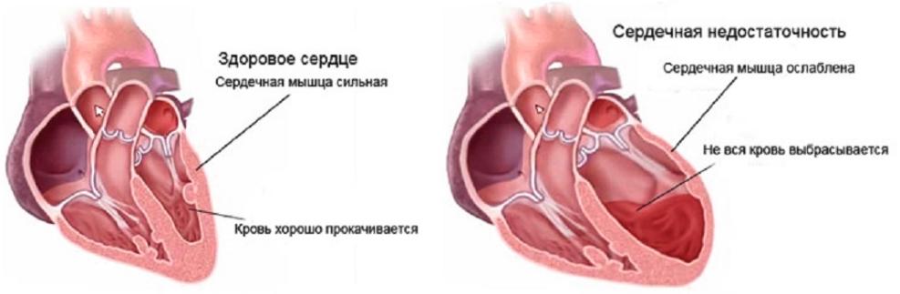 Хроническая форма недостаточности сердца и сосудов