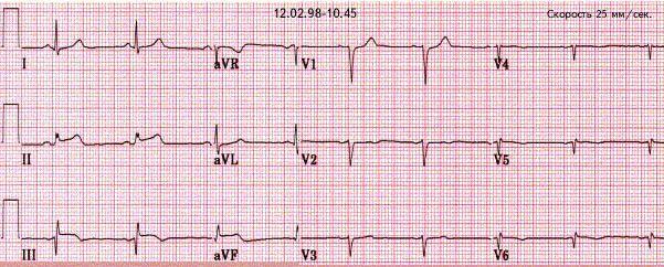 Хронический инфаркт