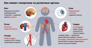 Осложнение артериальной гипертензии